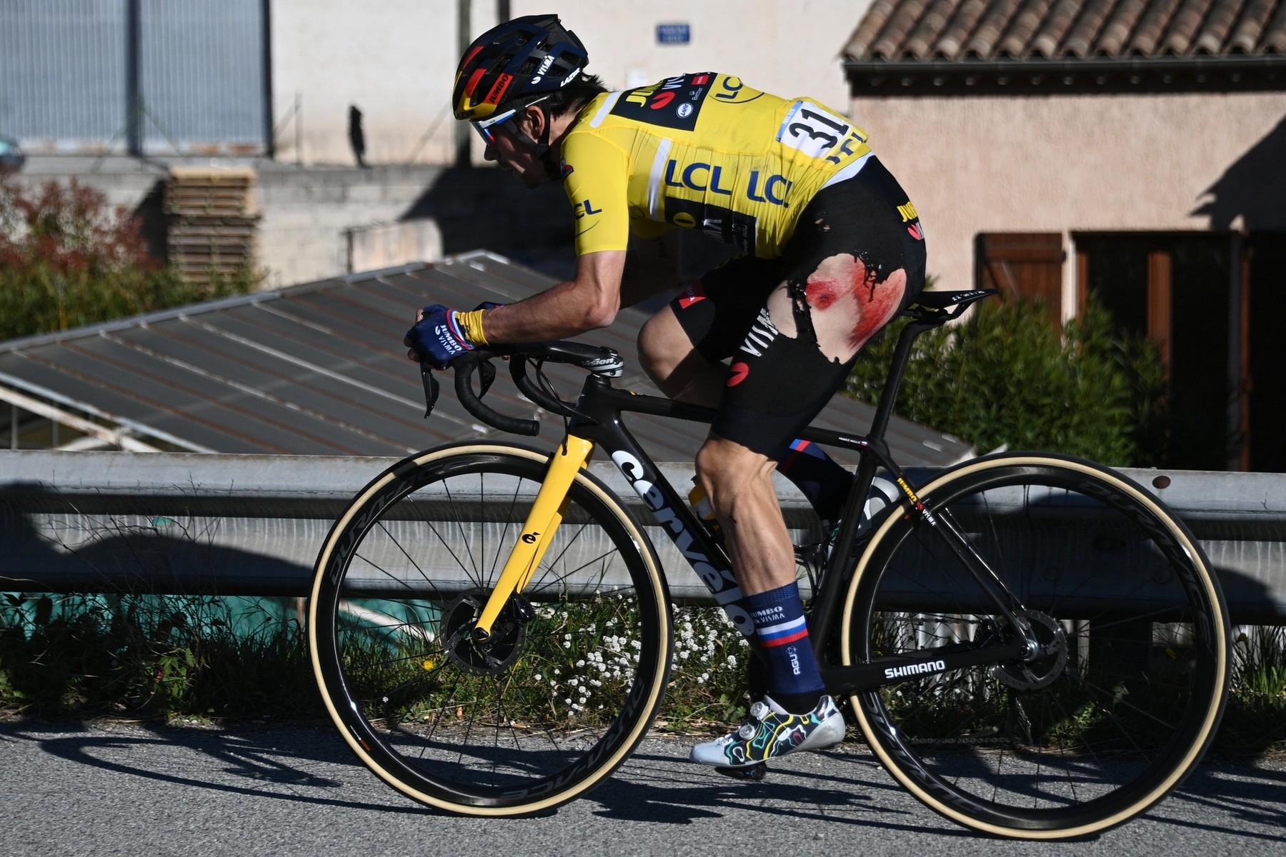 Primož Roglič sedřený po pádu v závodě Paříž-Nice. Foto: profimedia